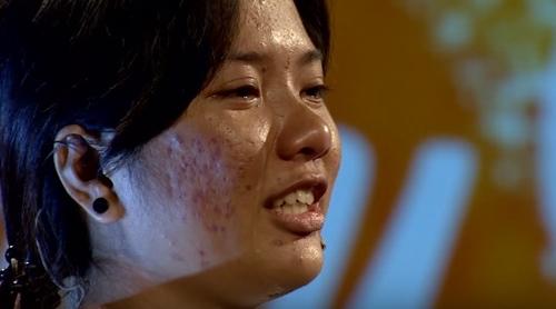 Gương mặt nhiều sẹo, mụn chi chít của Hương Trà trước khi phẫu thuật thẩm mỹ.