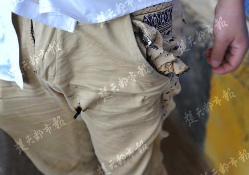 Chiếc quần bị cháy thủng của Zhang.