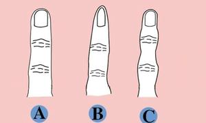 Chọn kiểu ngón tay giống với bạn nhất để xem tính cách