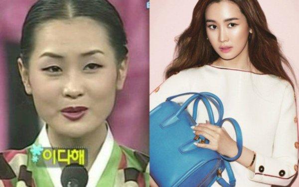 Lee Da Hae gắn liền với hình tượng ngọc nữ vì vẻ đẹp hồn nhiên, trong sáng. Nữ diễn viên có khuôn mặt V line, nước da trắng mịn, đường nét gương mặt hài hòa, nét cười tươi tắn. Chính vẻ đẹp thanh thoát, mong manh này đã giúp cô tạo dấu ấn với khán giả qua các phim như Hoa hồng xanh, My Girl.  Ảnh 4 Những hình ảnh trong quá khứ của Lee Da Hee khiến công chúng bị sốc vì nhan sắc quá khác biệt so với hiện tại. Cô vốn có một gương mặt góc cạnh, nước da ngăm, đôi mắt nhỏ, chiếc mũi thấp.
