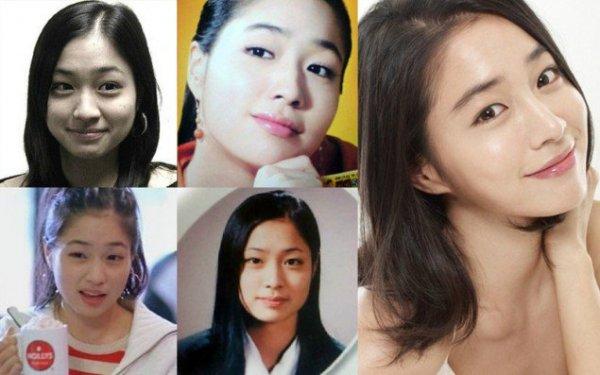 Trong quá khứ, Lee Min Jung sở hữu gương mặt tròn, chiếc mũi và bọng mắt đều to, xương quai hàm bạnh. Dù vẫn có những đường nét đáng yêu nhưng rõ ràng nhan sắc ban đầu sẽ rất khó giúp cô trở nên nổi tiếng.