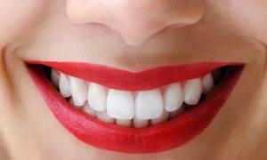 Hình dạng răng nói gì về tính cách của bạn