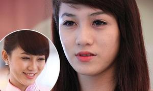 Quá khứ da mụn, răng khấp khểnh của cô gái 'mặt đẹp nhất The Face'
