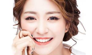 Những hot girl Việt cười hở lợi vẫn cực xinh
