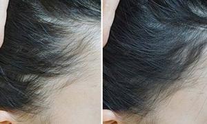 4 món mỹ phẩm ngụy trang cho người ít tóc
