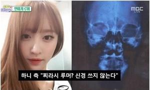 Hani tung ảnh chụp cắt lớp chứng minh không dao kéo