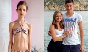 Cô gái nặng 22kg thay đổi hoàn toàn sau khi có bạn trai
