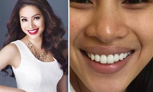 Mỹ nhân Việt bất bình về vụ 'làm răng bị đình chỉ thi hoa hậu'
