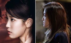 IU, Na Eun lộ sống mũi thấp trong ảnh chụp nghiêng