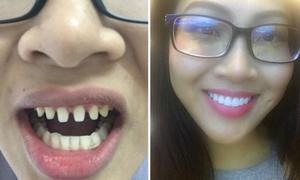 Bọc răng sứ tuy mốt nhưng vẫn có 3 điều đáng cân nhắc