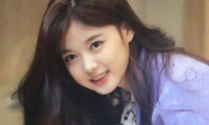 Bị sưng má, Kim Yoo Jung vẫn được khen xinh