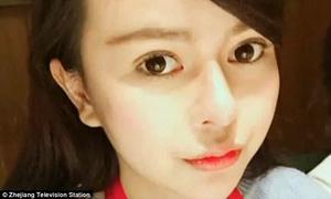 Cô gái trẻ bị bạn thân hủy hoại nhan sắc 'dày công dao kéo'