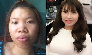 Quá trình thay đổi nhan sắc của cô gái bị gọi là 'Thị Nở tái sinh'