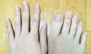 Cô gái có ngón chân dài như ngón tay