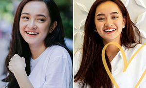 Kaity Nguyễn bớt ngây thơ, mặt khác lạ sau khi làm răng