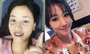 Thêm một sao Việt sang Hàn dao kéo theo trào lưu mặt tròn baby