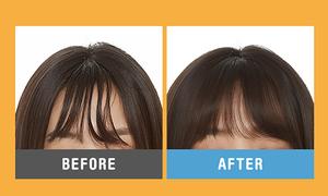 3 sản phẩm 'thần thánh' giải cứu tóc mái bết dính ngày hè