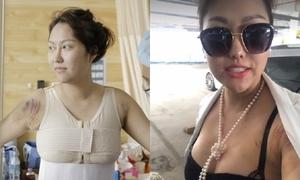 Phi Thanh Vân tự tin mặc đồ bó để lộ sẹo sau gần 10 ngày 'dao kéo toàn thân'