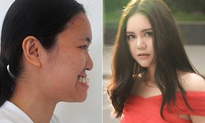 Từng bị chê là 'vượn chưa tiến hóa', cô gái Việt xinh như con lai sau dao kéo
