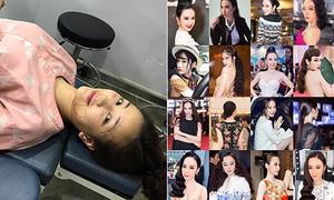 Sao Việt 25/8: Maya lên bàn phẫu thuật lần 2, Angela Phương Trinh là 'thánh kiểu tóc'