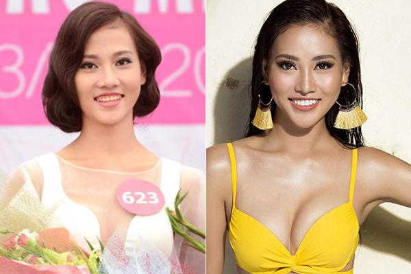 3 cô gái xinh như mộng ở Hoa hậu Hoàn vũ bị nghi sửa răng, thẩm mỹ - 1