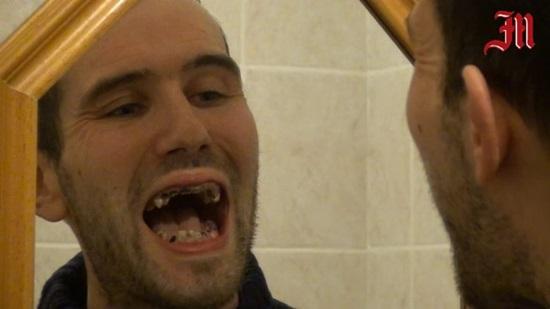 Bị mòn cả hàm răng vì thói quen uống nước ngọt có ga