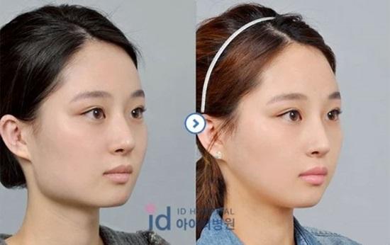 9 kiểu phẫu thuật thẩm mỹ phổ biến nhất tại Hàn Quốc - 1