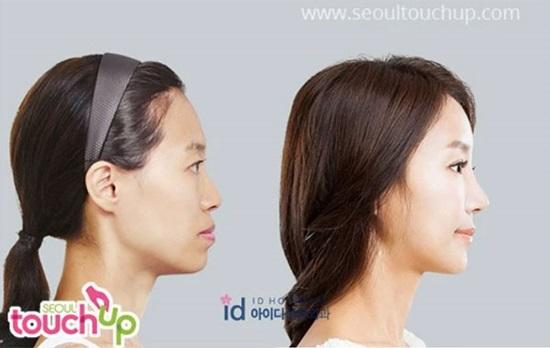 9 kiểu phẫu thuật thẩm mỹ phổ biến nhất tại Hàn Quốc - 3
