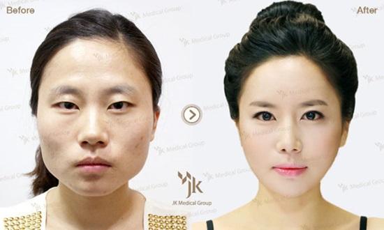 9 kiểu phẫu thuật thẩm mỹ phổ biến nhất tại Hàn Quốc - 6