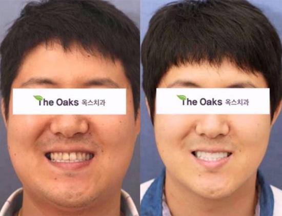 9 kiểu phẫu thuật thẩm mỹ phổ biến nhất tại Hàn Quốc - 7