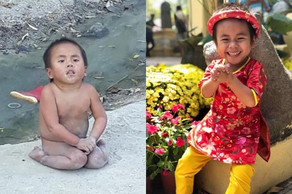 Sự thay đổi cuộc sống của bé Pàng gây xúc động.
