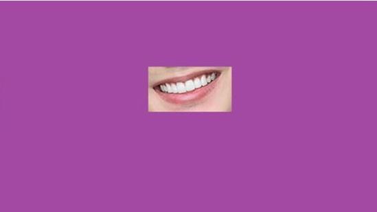 Quiz: Đoán sao nam Hàn qua nụ cười - 7