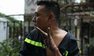 Bàn tay tuột da vì bỏng của anh lính cứu hỏa trong vụ cháy lớn ở Sài Gòn gây xót xa