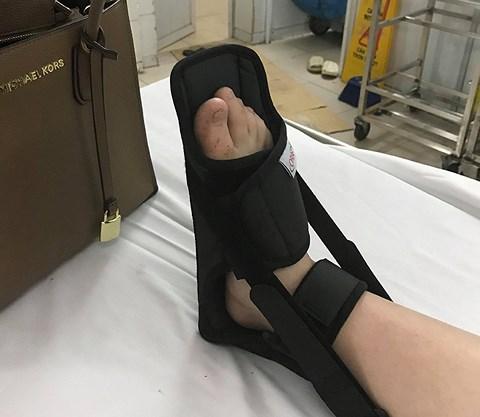Nữ sinh Phương T. bị tai nạn phải vào viện nẹp chân.