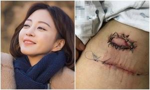 Mỹ nhân Hàn bức xúc vì vết khâu kinh dị do cắt khối u