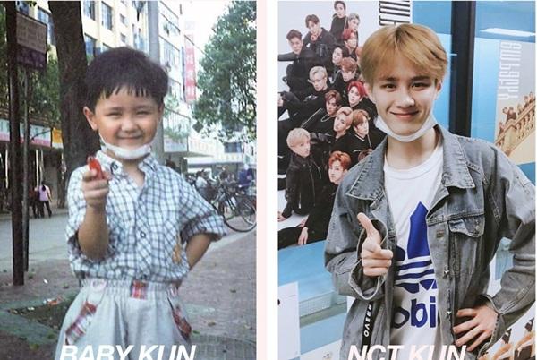 Hồi nhỏ nghịch ngợm nên Kun phải băng ở cằm. Trong bức ảnh lúc dậy thì, anh chàng thay thế bằng khẩu trang trắng, vừa giống, vừa thời trang hơn hẳn.