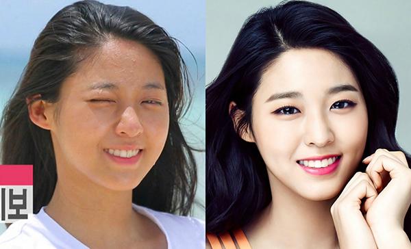 Seol Hyun khi lên ảnh trông rất long lanh nhưng thực tế ở ngoài đời, cô nàng lại sở hữu làn da có nhiều khuyết điểm như da ngăm không đều màu, nổi nhiều mụn ẩn li ti.