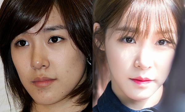 Mọi nhược điểm như da ngăm, mụn sưng đỏ ở cằm được Tiffany che giấu khéo léo dưới lớp makeup trông cực kỳ tự nhiên.