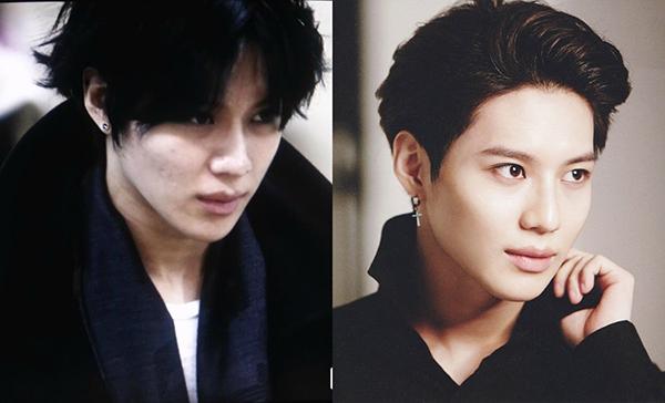 Tae Min (SHINee) có nhiều khuyết điểm trên vùng má.