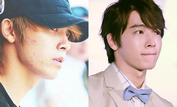 Dong Hae hẳn phải cảm ơn các chuyên gia trang điểm rất nhiều vì đã hô biến giúp anh chàng có làn da căng mướt cực tự nhiên khi lên sân khấu.
