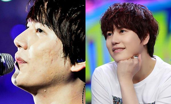 Kyu Hyun khiến nhiều người hâm mộ không khỏi ngạc nhiên vì làn da sần sùi lúc nhìn ở cự ly gần.