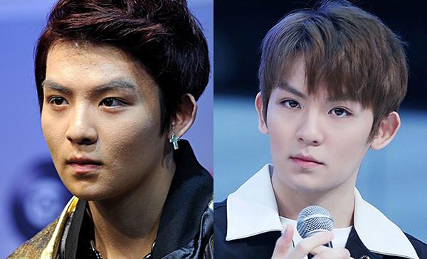 Việc trang điểm quá thường xuyên khiến làn da của Ricky (Teen Top) không được chăm sóc đúng cách, gây nên tình trạng mụn ẩn.
