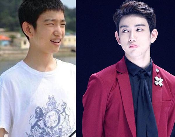 Jin Young có sự lột xác ngỡ ngàng khi so sánh ảnh trước và sau debut.