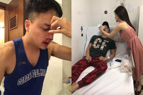 Cao Thái Sơn bị vỡ mạch máu mũi phải nhập viện cấp cứu.