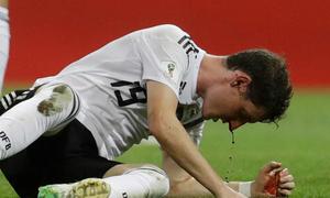 Tân binh đội tuyển Đức bị thay oan uổng vì hết áo thi đấu