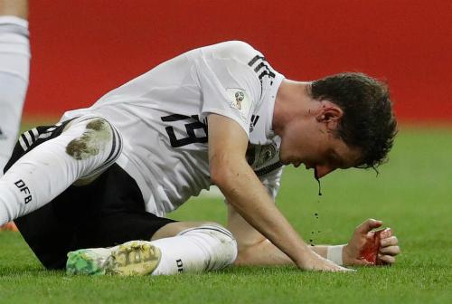 Sebastian Rudy bị thương ở mũi sau một va chạm.