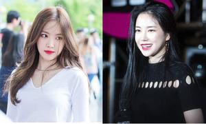 Son Na Eun - sẵn mặt xinh dáng đẹp vẫn tham phẫu thuật thẩm mỹ
