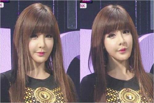 Park Bom của hiện tại thường xuyên xuất hiện với khuôn mặt cứng đơ, khác hẳn vẻ trong sáng, tự nhiên ngày xưa. Cứ mỗi lần giọng ca You and I  xuất hiện là một lần netizen đấu khẩu xem khuôn mặt của Park Bom là  hậu quả lạm dụng dao kéo hay là do căn bệnh sưng hạch bạch huyết. Dù lý do là gì chăng nữa thì nhan sắc hiện tại của cô nàng cũng đều khiến khán giả phải tiếc nuối một Park Bom nhẹ nhàng, thuần khiết năm nào.