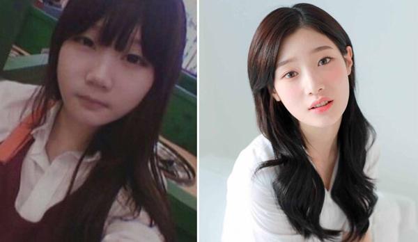 Khi mới tham gia show sống còn Produce 101, thực tập sinh của nhà MBK Entertainment Jung Chae Yeon đã khiến bao fan mất ăn mất ngủ bởi độ xinh đẹp không tì vết.Khi bị đào lại ảnh quá khứ, nữ idol lộ ra đã cắt mắt hai mí, nâng mũi, tuy nhiên khéo đến mức không phải ai cũng nhận ra.
