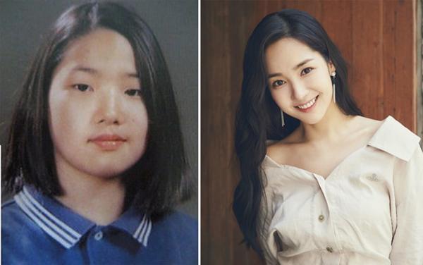 Nữ diễn viên Park Min Young đã và luôn là Nữ hoàng dao kéo số 1 tại Kbiz bởi gương mặt xinh đẹp không tì vết của cô nàng khiến ai cũng ngỡ là tự nhiên từ bé. Nhưng khi đào bới những tấm ảnh cũ của cô nàng, ai cũng sốc bởi trong quá khứ, nữ diễn viên sở hữu đôi mắt một mí đặc trưng, gương mặt to bạnh và làn da sạm. Tuy nhiên, Park Min Young đã thừa nhận ngay mình đã phải nhờ tới dao kéo, nhờ vậy cô nàng lại càng nhận thêm cơn mưa lời khen từ khán giả.